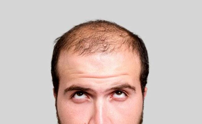 Saç ektirmedeki büyük tehlike ne?