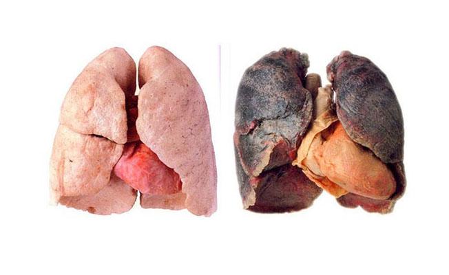 İşte sigara kullanımın ortaya çıkardığı tablo