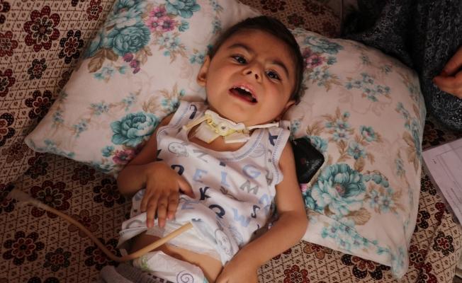 Küçücük bedeni ile yaşam savaşı veriyor!